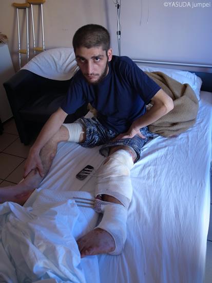 政府軍の砲撃で負傷し、隣国で治療を受けるシリア人。妻子を失ったという男性の思い 詰めたような目が気になった=2012年6月14日