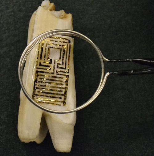 歯に描かれた電子タトゥーが、 虫歯や感染症を予防する【サイエンスニュース】