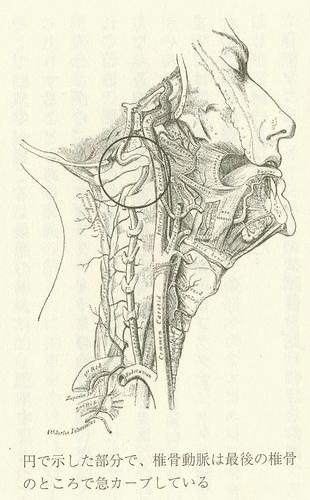カイロプラクティックと脳卒中(「代替医療のトリック」)