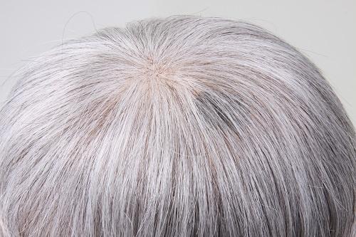 白髪でも肌色(左)なら黒(右)のように目立たない