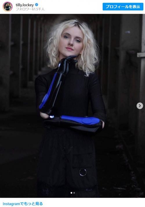 義手を装着した15才のイギリス人バイオニックモデル