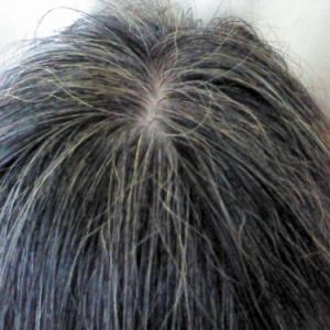 白髪を引き起こす遺伝子が特定される ロンドン大学ユニバーシティカレッジの発見