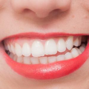 歯石で考古学のナゾがわかる? 骨や歯の25倍のDNA情報が
