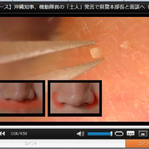 毛穴から角栓がスルっと…… 『niconico』の「低倍率で角栓抜いてみた」動画