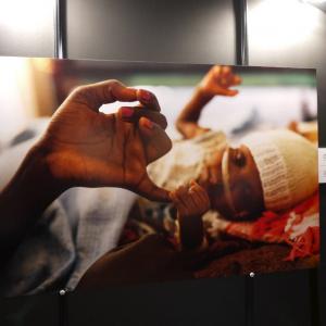 救いを求める人々への非情な暴力……頻発する病院攻撃を写真展で告発