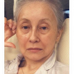 「50〜60年後のわたし」 ダレノガレ明美さんの老化画像が話題に