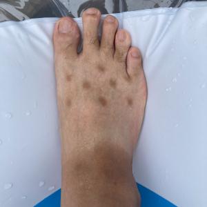 足にできた斑点の原因は……人気アイテムの常用による悩みの声が続出