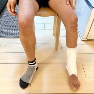 片脚を怪我して6週間使わなかった結果こんなにも細く……あまりにも無残な写真をご覧ください