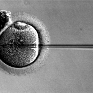 """少子高齢化、晩婚時代の到来で""""不妊症""""が増加中! 不妊治療法とは何か?"""